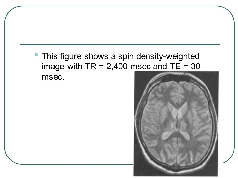 This figure shows a spin density-weighted image with TR = 2,400 msec and TE = 30 msec.