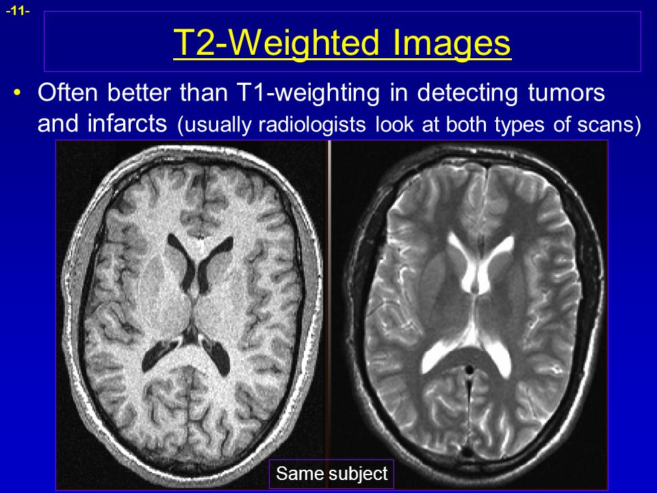 T2-Weighted Images Often better than T1-weighting in detecting tumors and infarcts (usually radiologists look at both types of scans)