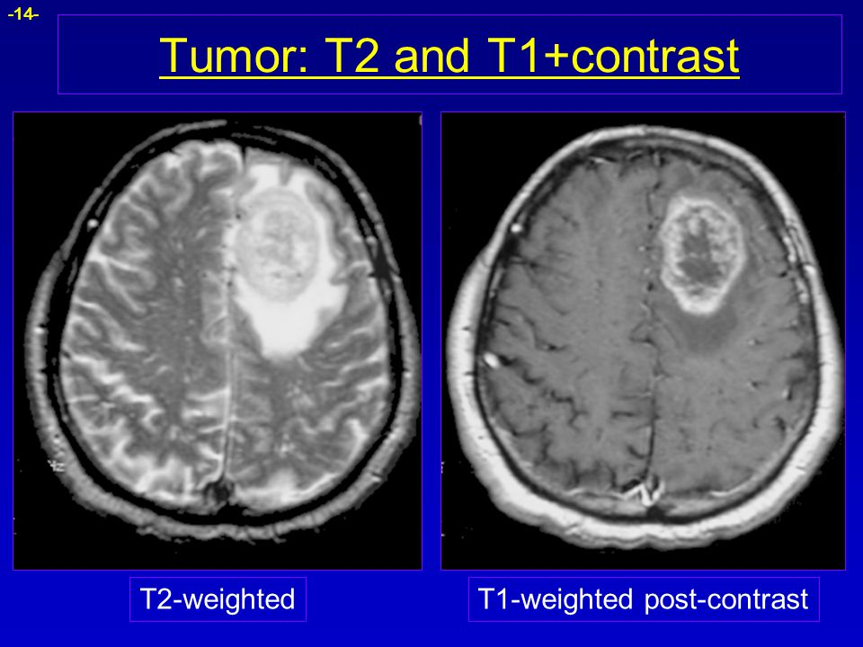 Tumor: T2 and T1+contrast