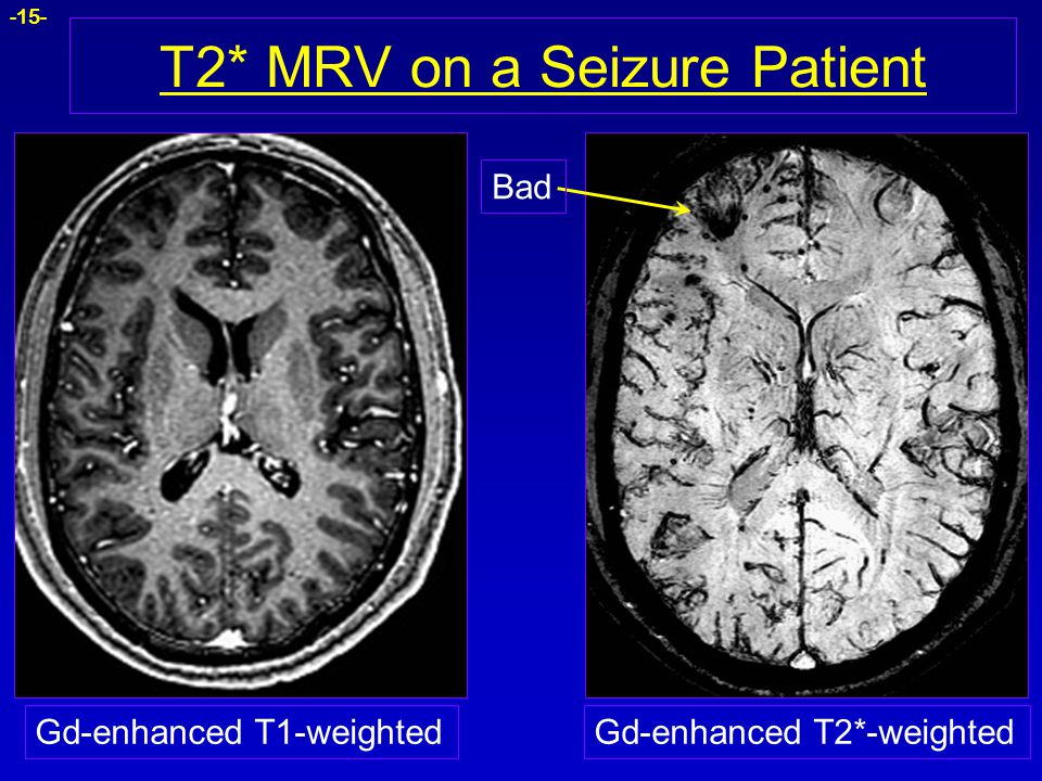 T2* MRV on a Seizure Patient