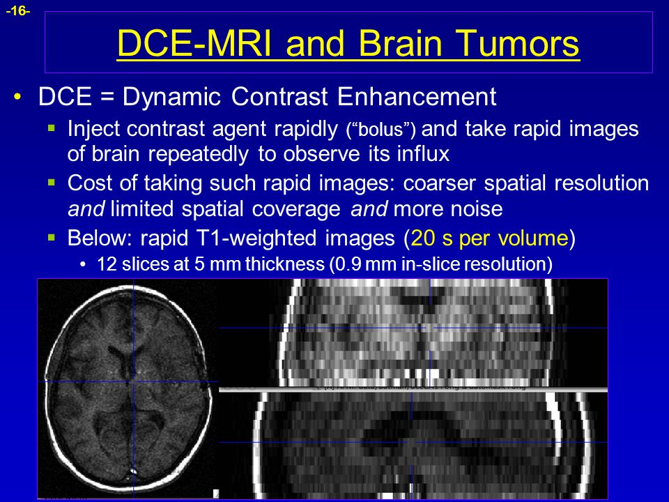 DCE-MRI and Brain Tumors