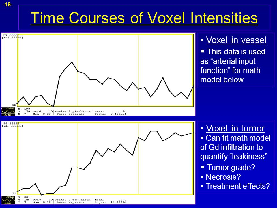 Time Courses of Voxel Intensities