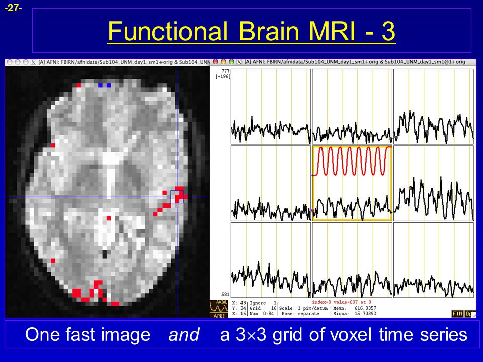 Functional Brain MRI - 3 One fast image and a 33 grid of voxel time series