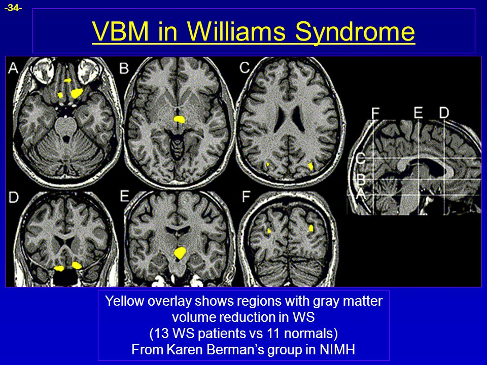 VBM in Williams Syndrome