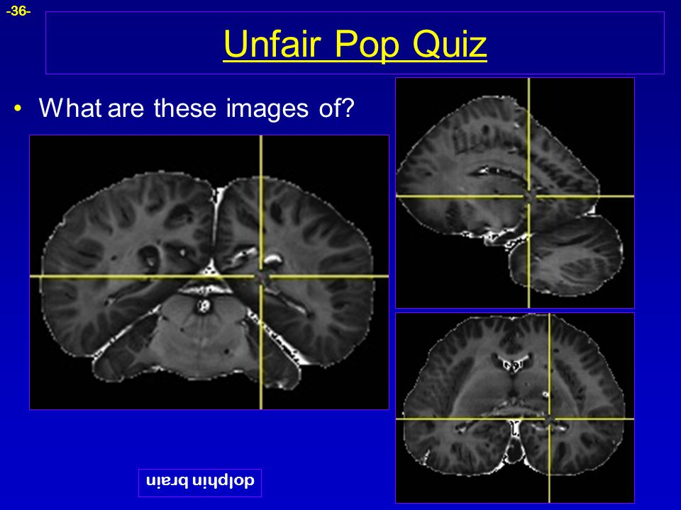 Unfair Pop Quiz What are these images of dolphin brain