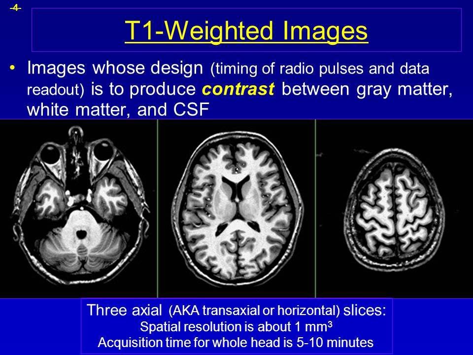 T1-Weighted Images Images whose design (timing of radio pulses and data readout) is to produce contrast between gray matter, white matter, and CSF.