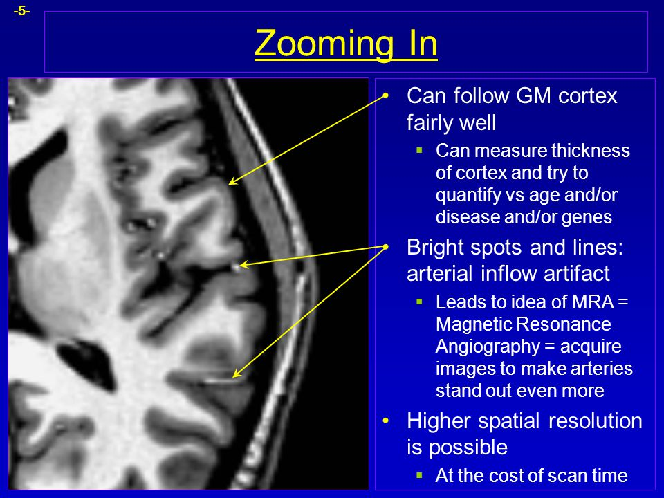 Zooming In Can follow GM cortex fairly well