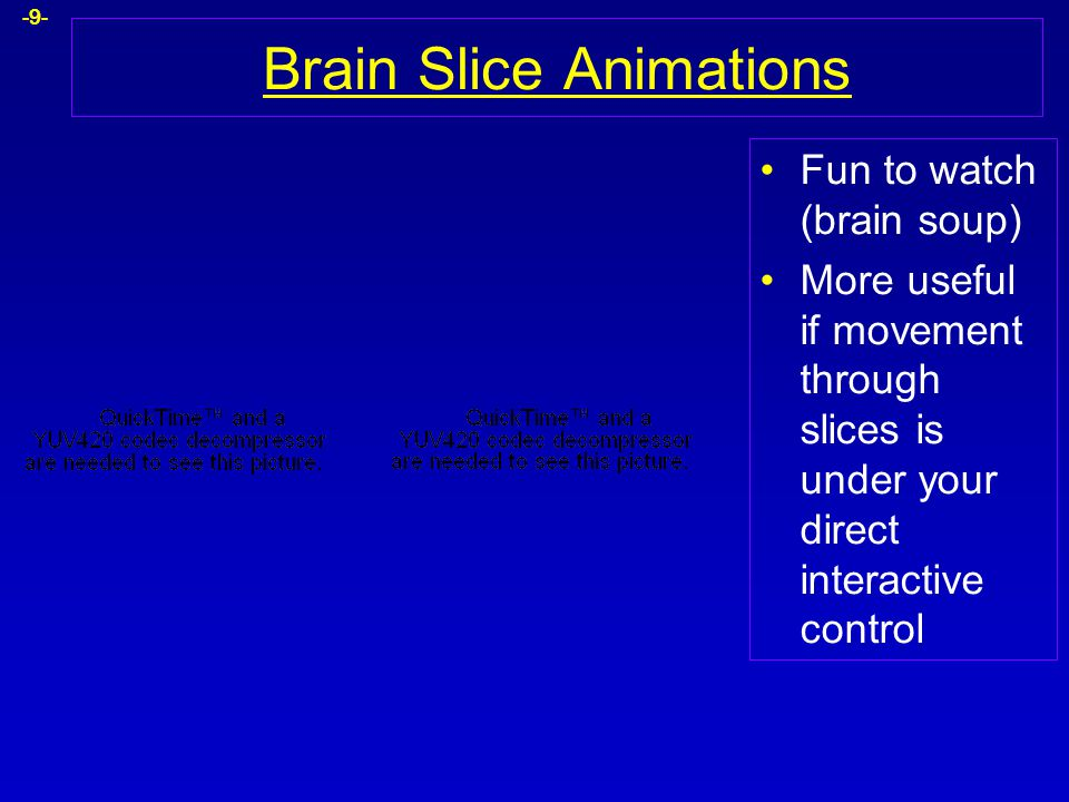 Brain Slice Animations