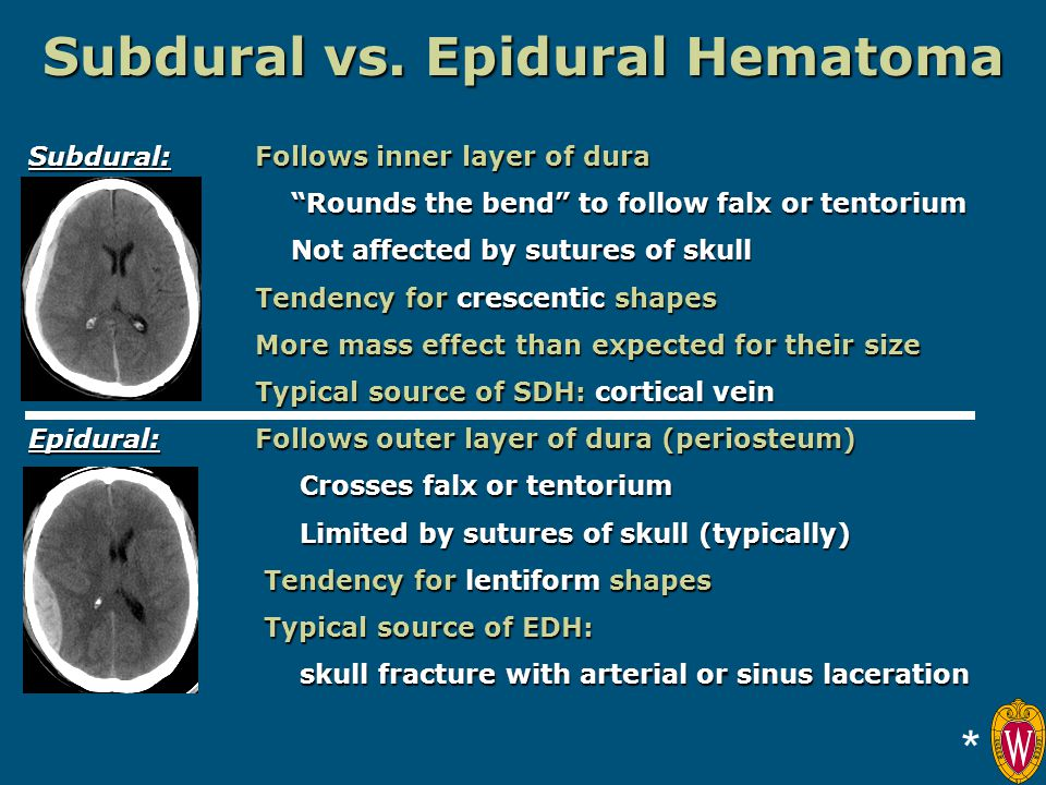 Subdural vs. Epidural Hematoma