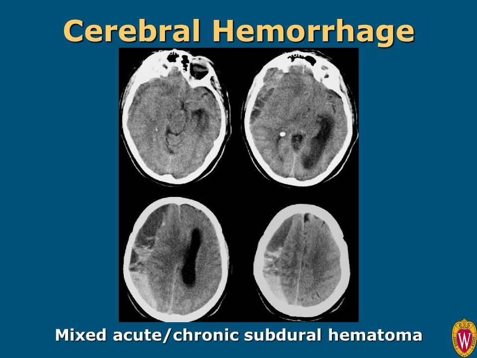 Mixed acute/chronic subdural hematoma
