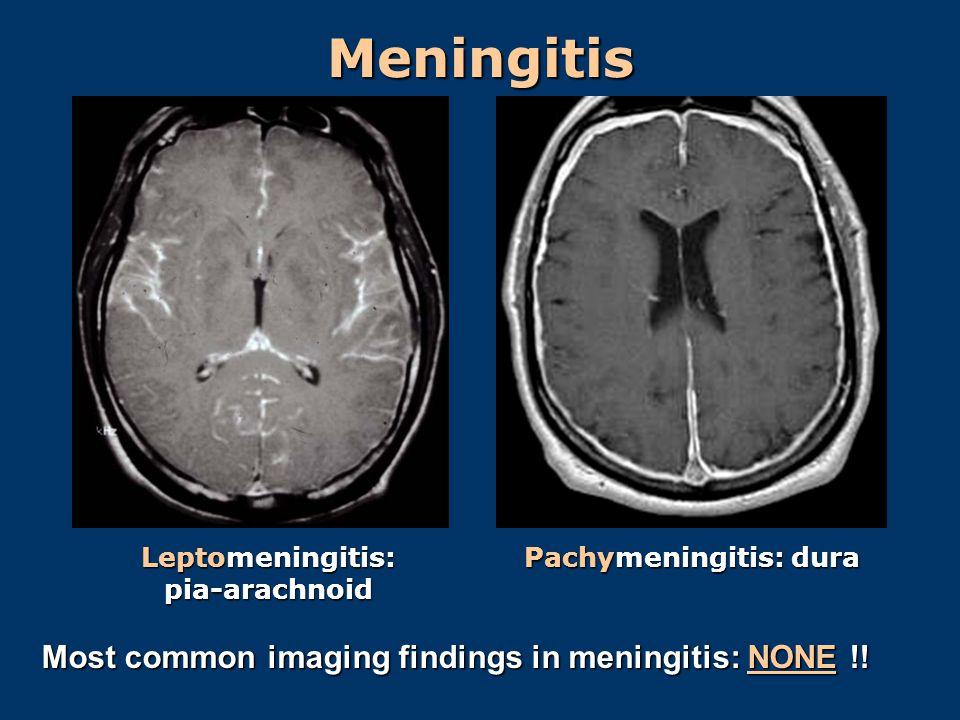 Leptomeningitis: pia-arachnoid Pachymeningitis: dura