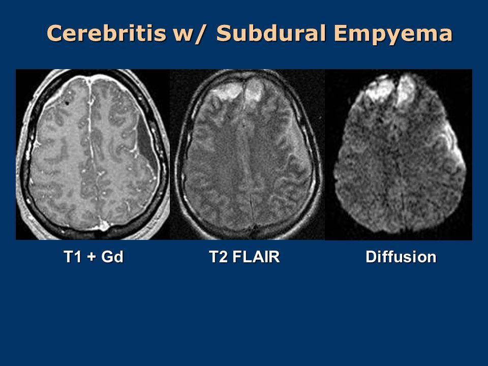 Cerebritis w/ Subdural Empyema