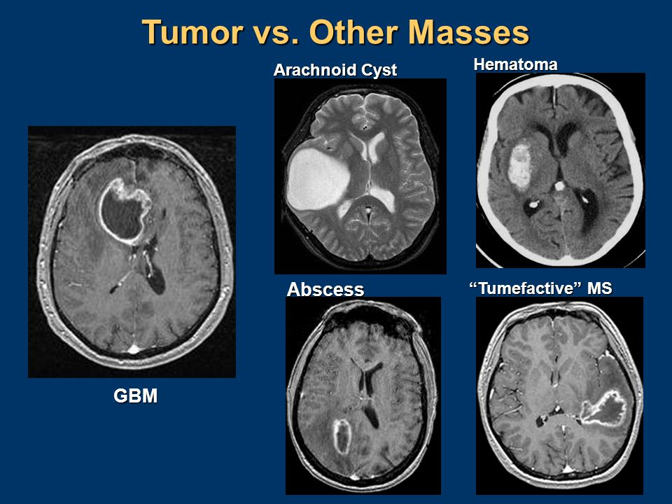 Tumor vs. Other Masses Abscess GBM Hematoma Arachnoid Cyst
