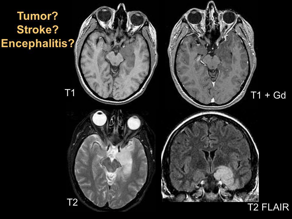 Tumor Stroke Encephalitis