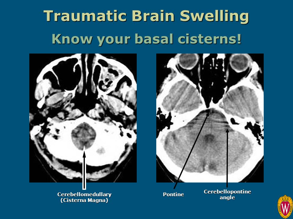 Traumatic Brain Swelling Know your basal cisterns!