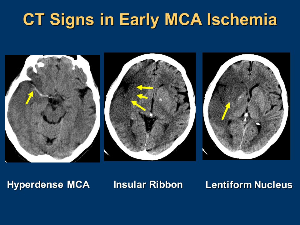 CT Signs in Early MCA Ischemia