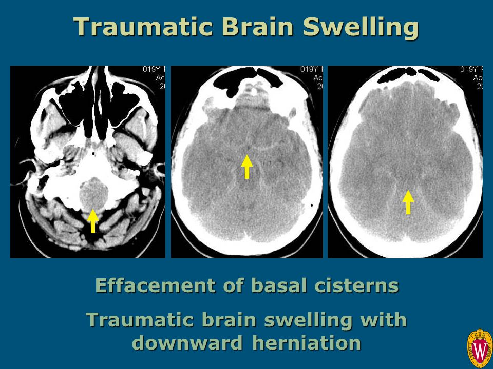 Traumatic Brain Swelling