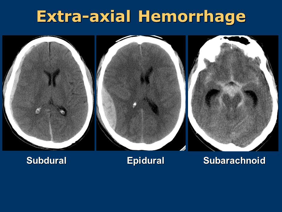 Extra-axial Hemorrhage