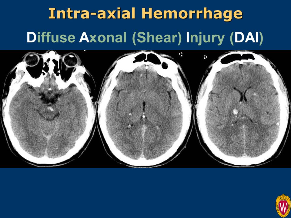 Intra-axial Hemorrhage