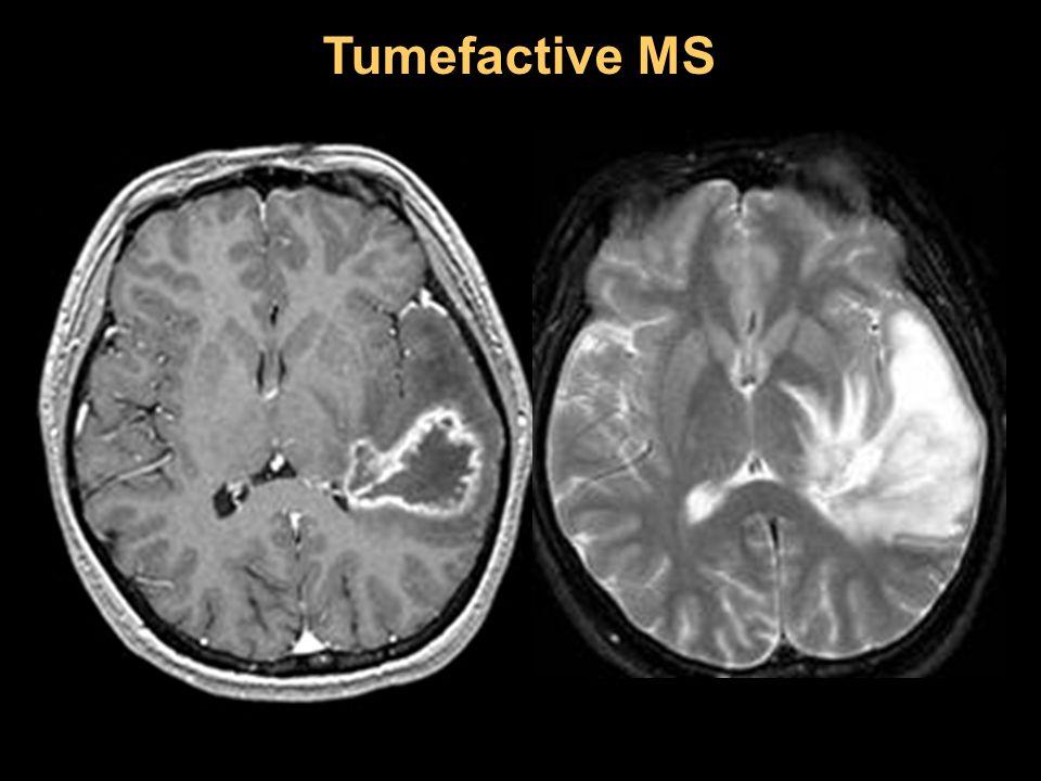 Tumefactive MS