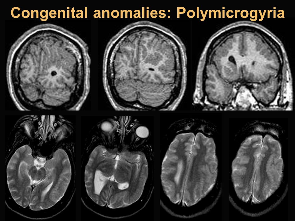 Congenital anomalies: Polymicrogyria