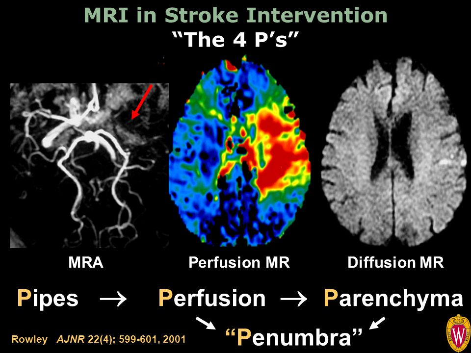 MRI in Stroke Intervention The 4 P's