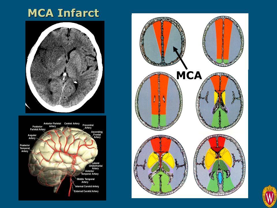 MCA Infarct MCA