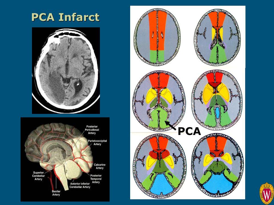 PCA Infarct PCA