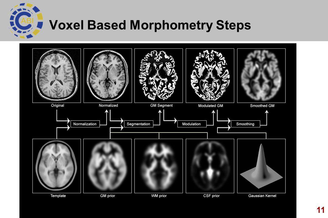 Voxel Based Morphometry Steps