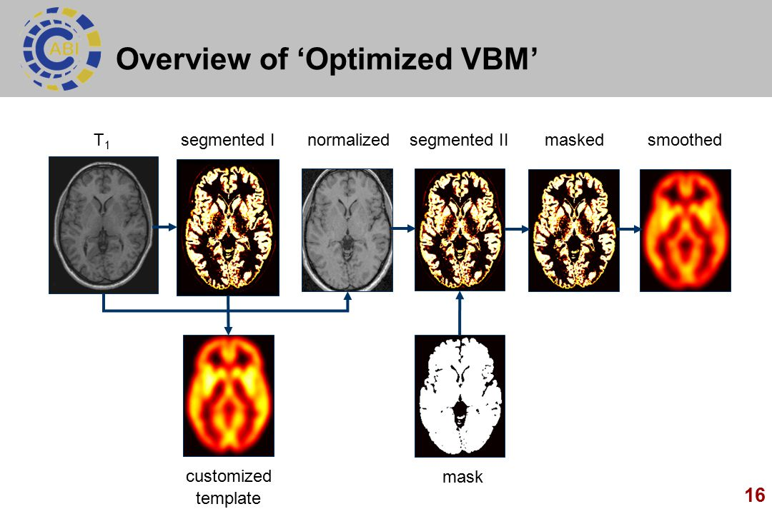 Overview of 'Optimized VBM'