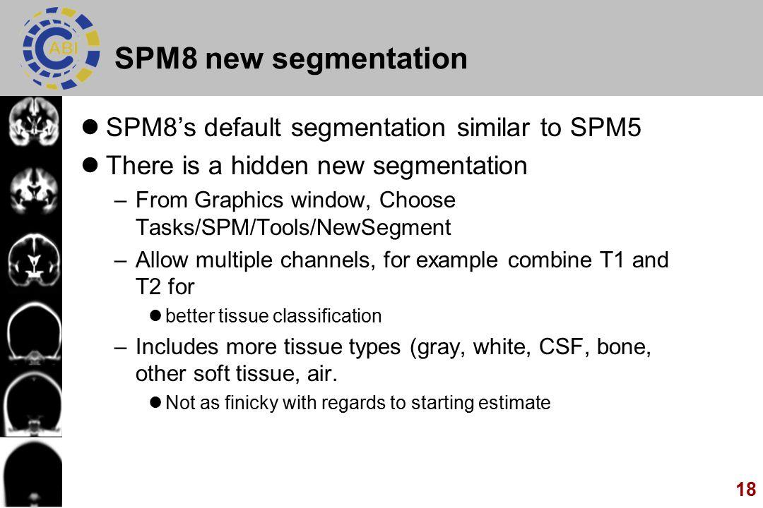 SPM8 new segmentation SPM8's default segmentation similar to SPM5