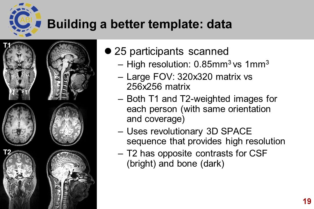 Building a better template: data