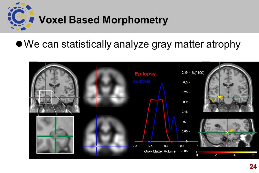 Voxel Based Morphometry