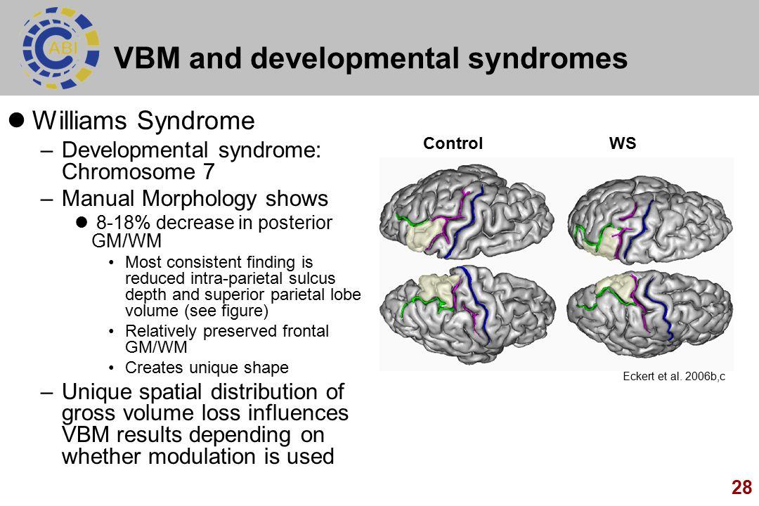 VBM and developmental syndromes