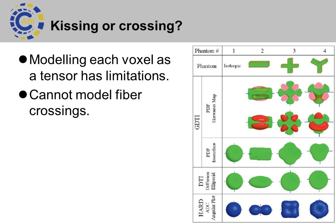 Kissing or crossing. Modelling each voxel as a tensor has limitations.