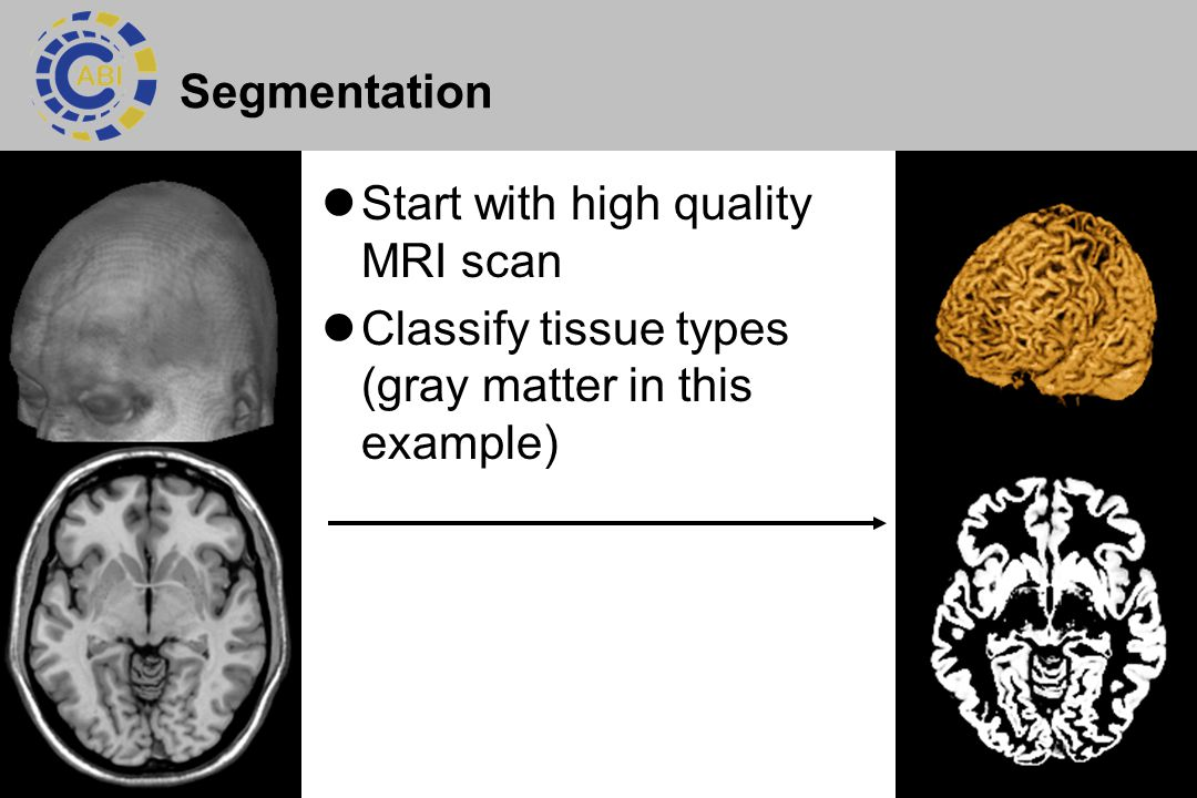Segmentation Start with high quality MRI scan Classify tissue types (gray matter in this example)