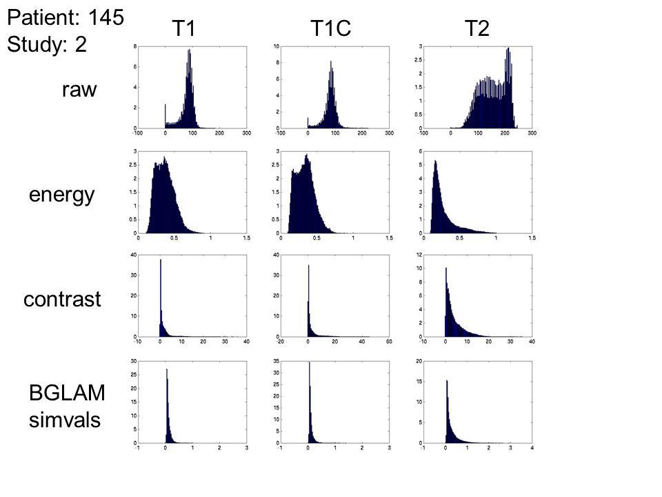 Patient: 145 Study: 2 T1 T1C T2 raw energy contrast BGLAM simvals