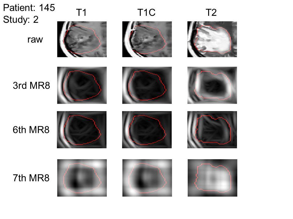 Patient: 145 Study: 2 T1 T1C T2 raw 3rd MR8 6th MR8 7th MR8
