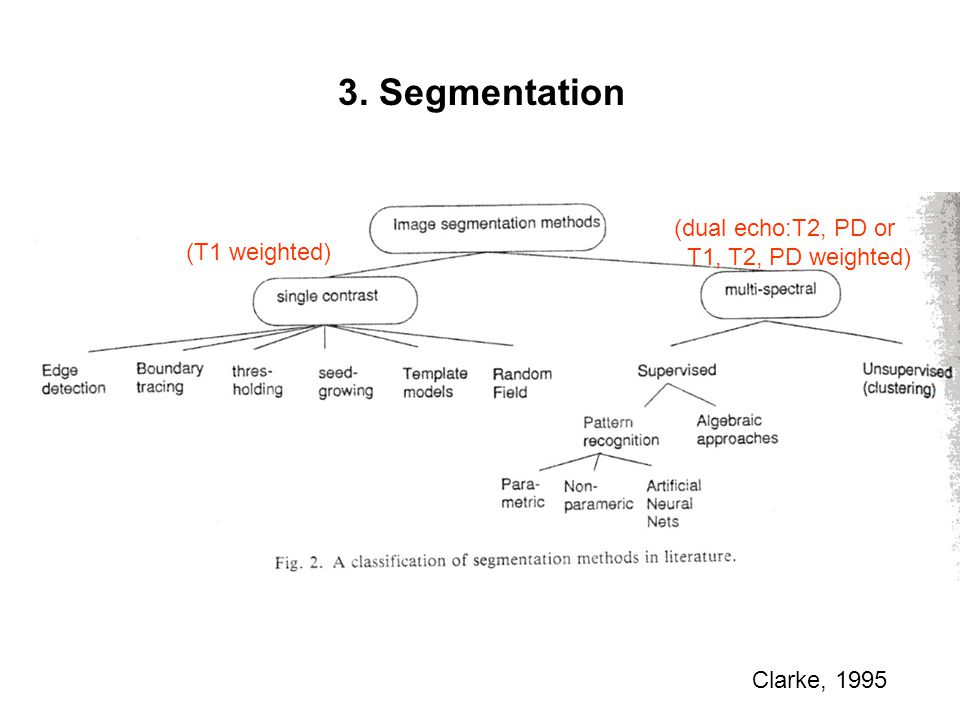 3. Segmentation (dual echo:T2, PD or T1, T2, PD weighted)