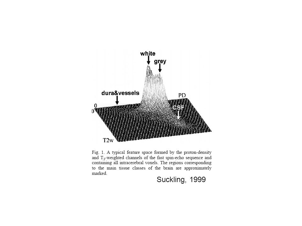 Suckling, 1999