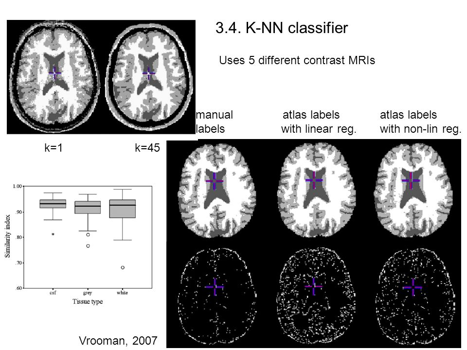 3.4. K-NN classifier Uses 5 different contrast MRIs