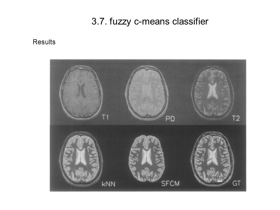 3.7. fuzzy c-means classifier