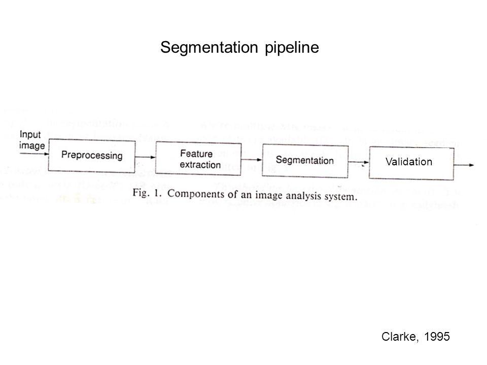 Segmentation pipeline