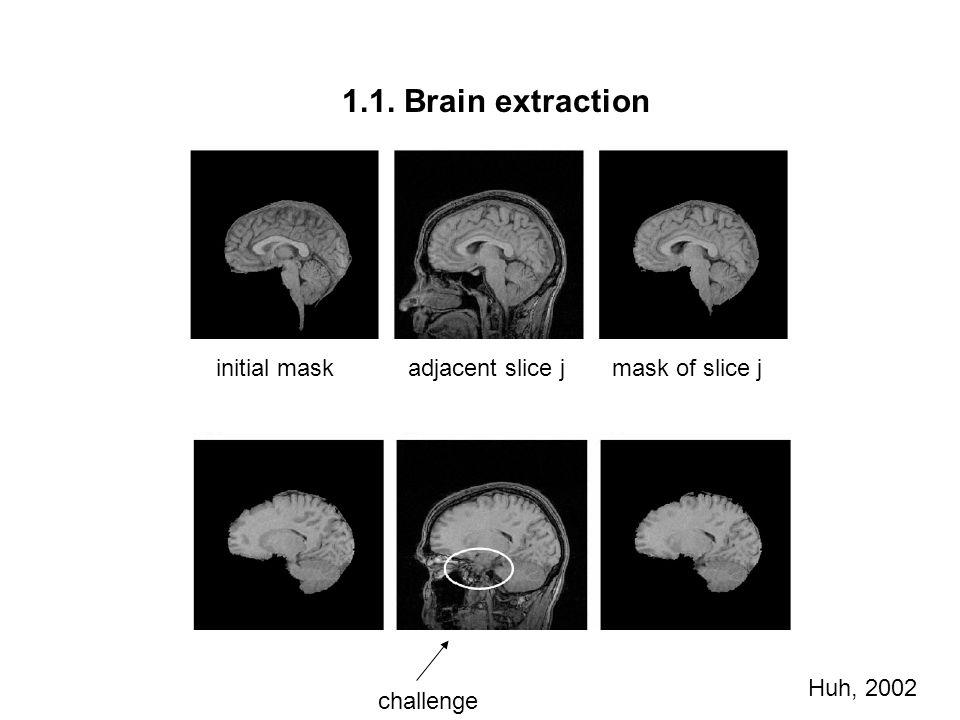 1.1. Brain extraction initial mask adjacent slice j mask of slice j