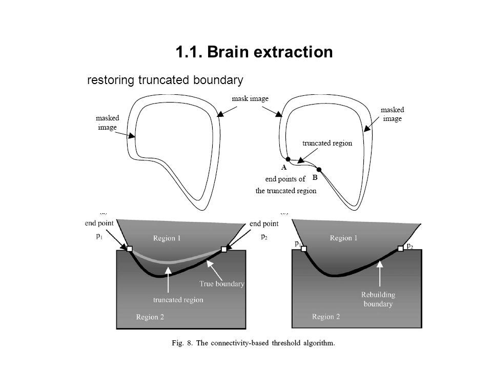 1.1. Brain extraction restoring truncated boundary