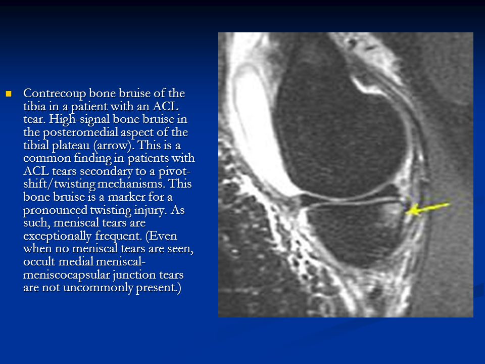 Contrecoup bone bruise of the tibia in a patient with an ACL tear