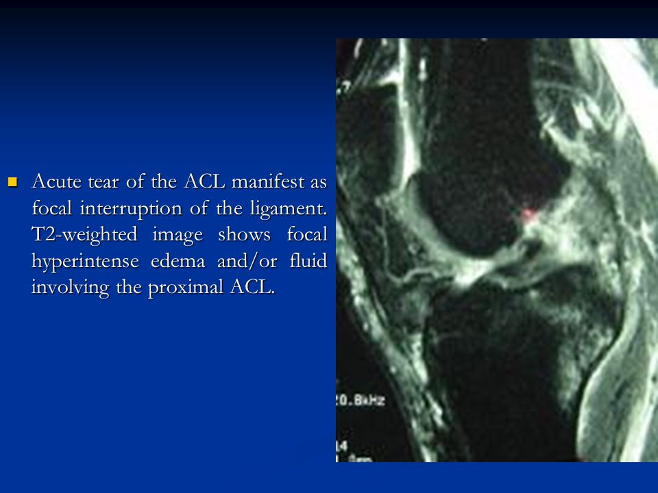 Acute tear of the ACL manifest as focal interruption of the ligament