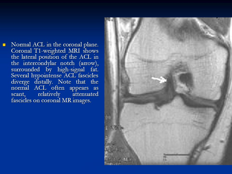Normal ACL in the coronal plane