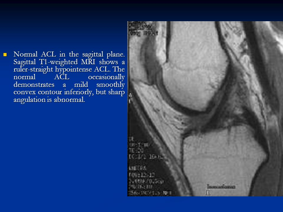 Normal ACL in the sagittal plane