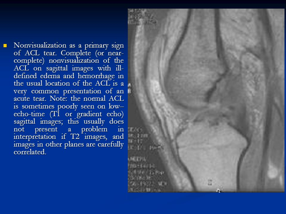 Nonvisualization as a primary sign of ACL tear